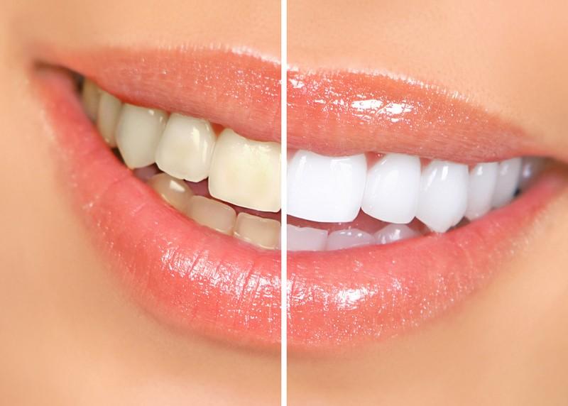 Teeth Whitening Dearborn, MI